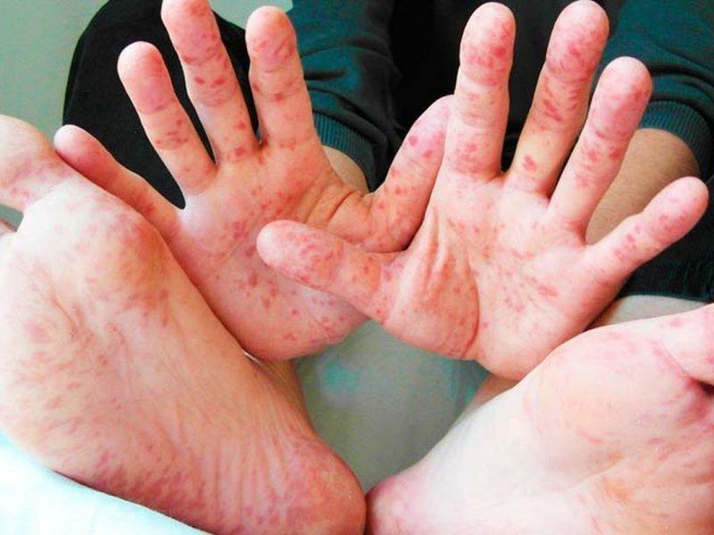 Корь – самая заразная инфекция! - врачи ЦРБ Морозовского района